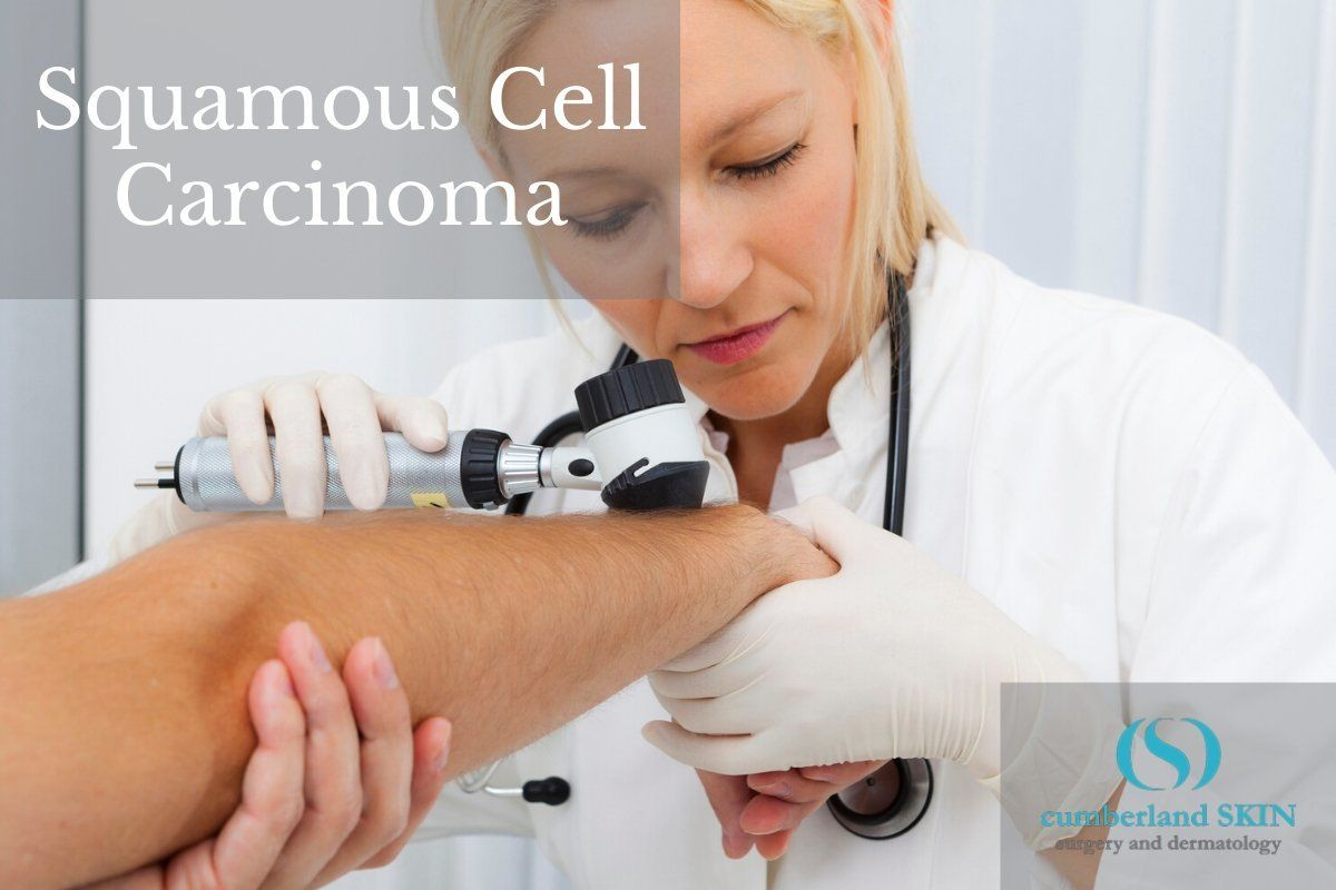 dermatologist examining a patient's arm for squamous cell carcinoma